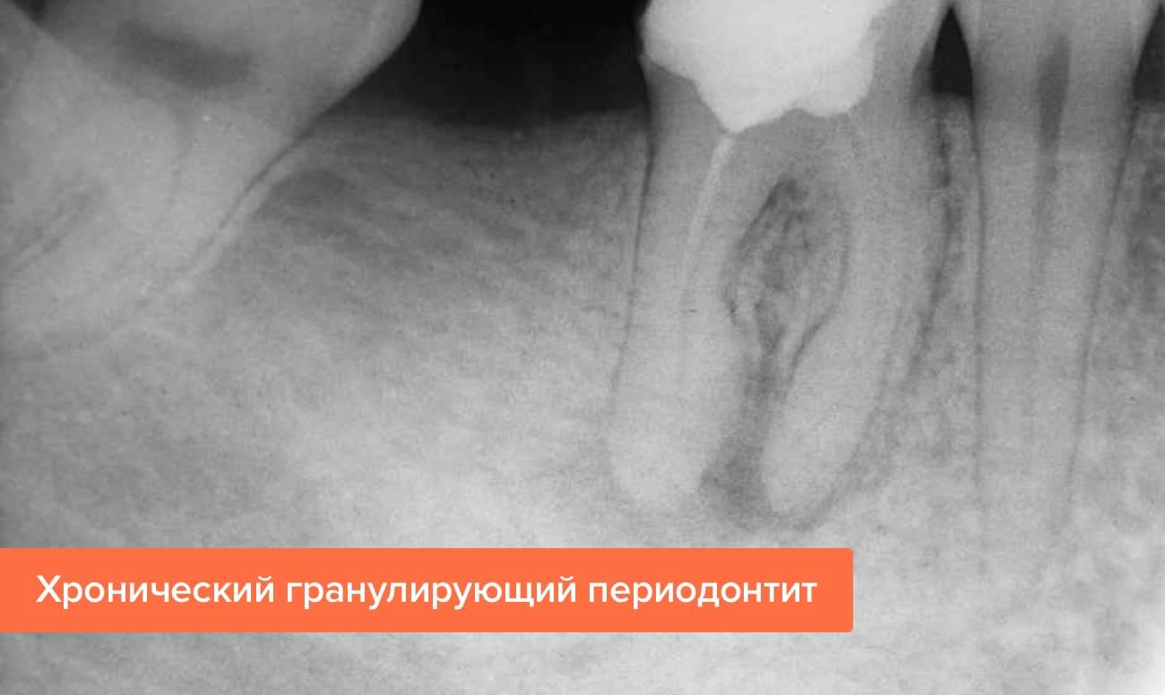 Рентген свища