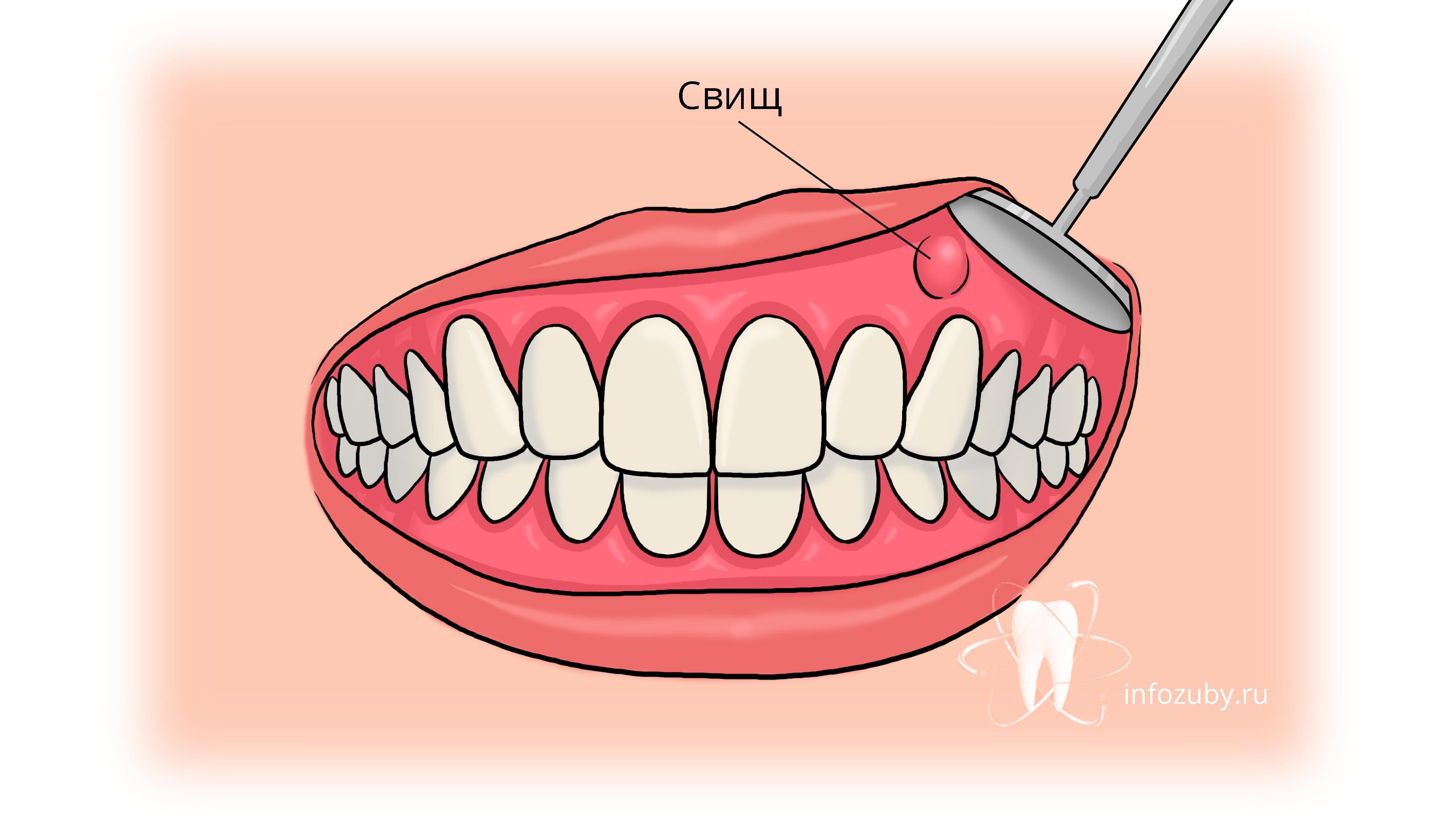 Что такое зубной свищ?