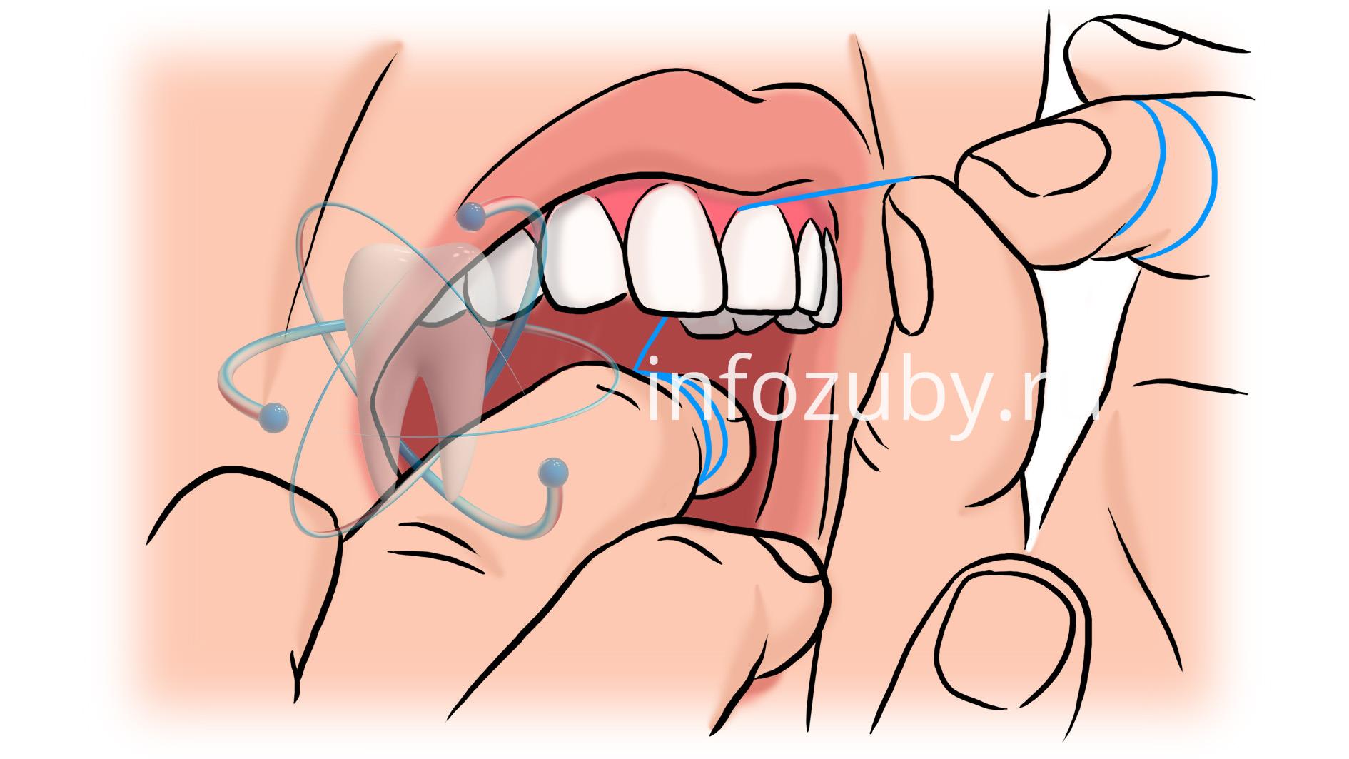 Как пользоваться зубной нитью? Примерное фото
