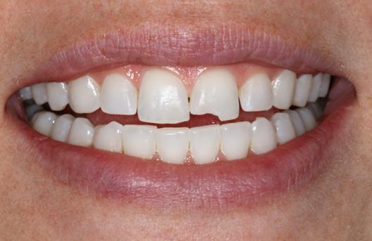 Причины крошения зубов