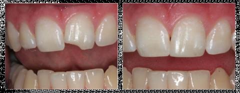 Реставрация раскрошившегося зуба