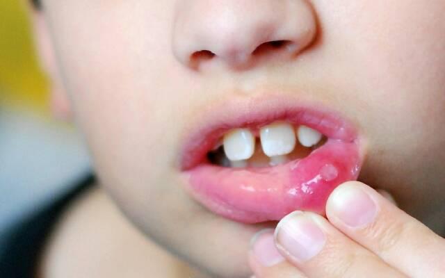 Как выглядит афтозный стоматит на губе?