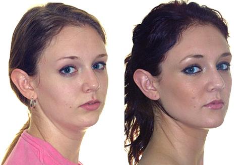 Дистальный прикус: до и после брекетов