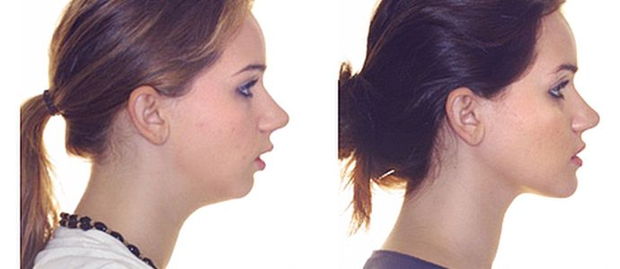 Дистальный прикус: до и после