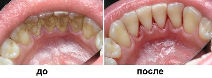 Как выглядит зубной камень?