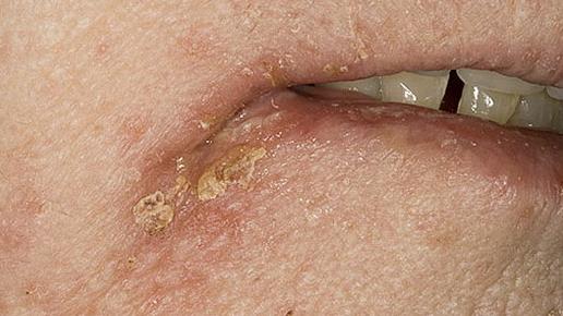 Стрептококковая заеда (фото)