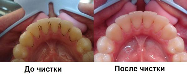 Зубной камень - фото до и после очистки