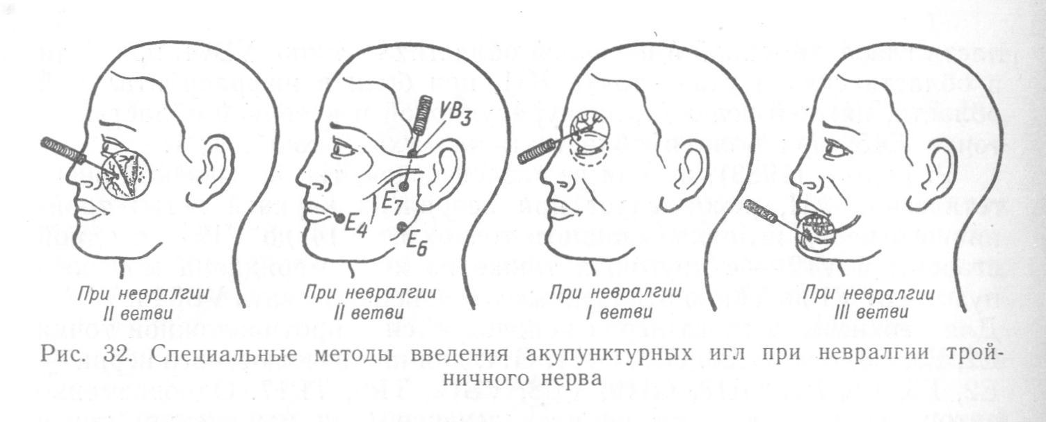 Иглоукалывание при невралгии