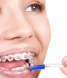 Как чистить зубы с брекетами ершиком?