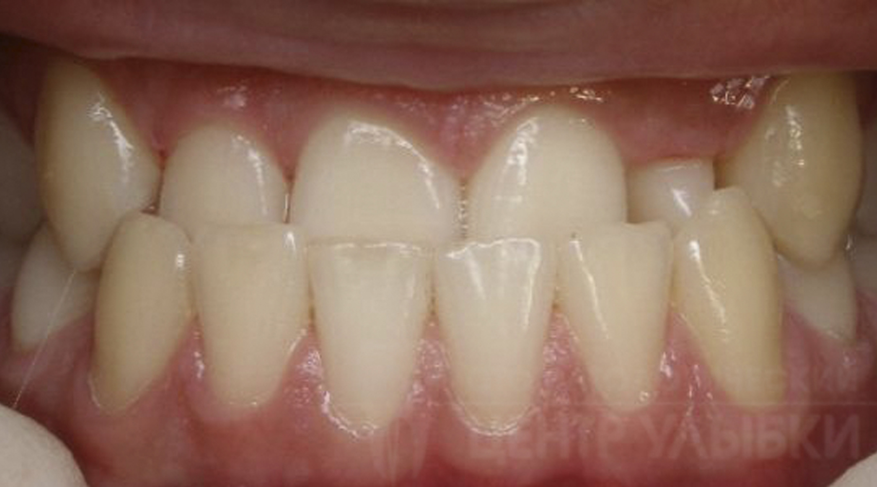 Как выглядит зубной ряд при мезиальном прикусе?
