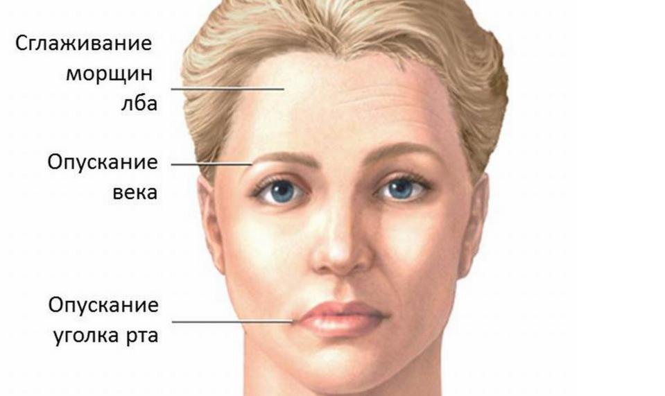 Фото неврита лицевого нерва