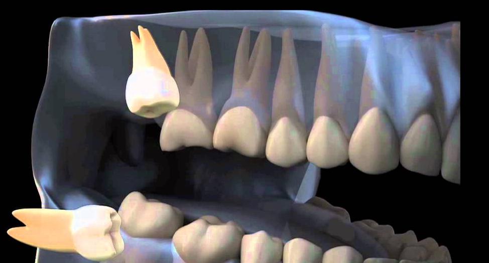 Как выглядит дистопированный зуб?