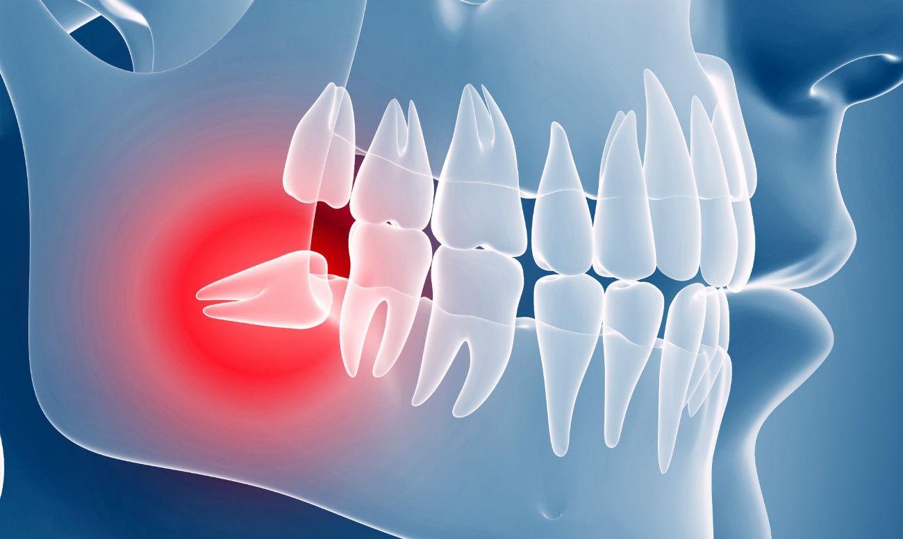 Ретинированный зуб фото