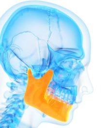 Тризм челюсти и жевательных мышц: как вылечить?