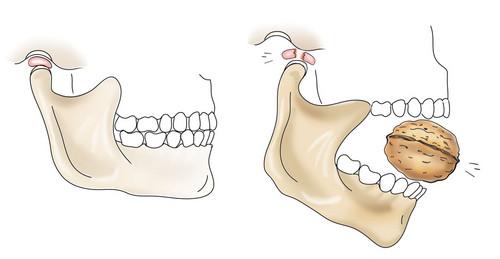 Тризм челюсти - схематический рисунок