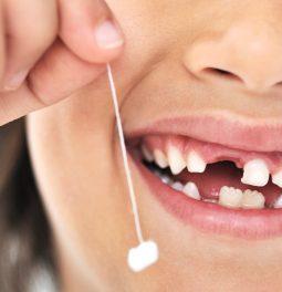 Вырванный зуб
