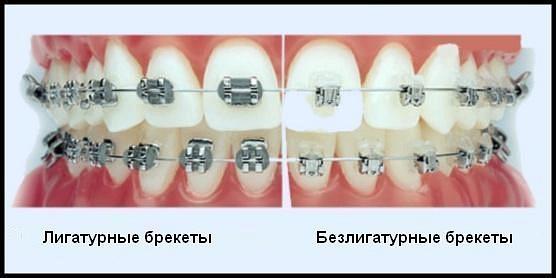 Чем отличаются безлигатурные и лигатурные брекеты?