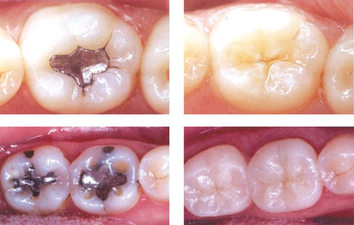 Глубокий кариес зубов: фото до и после лечения