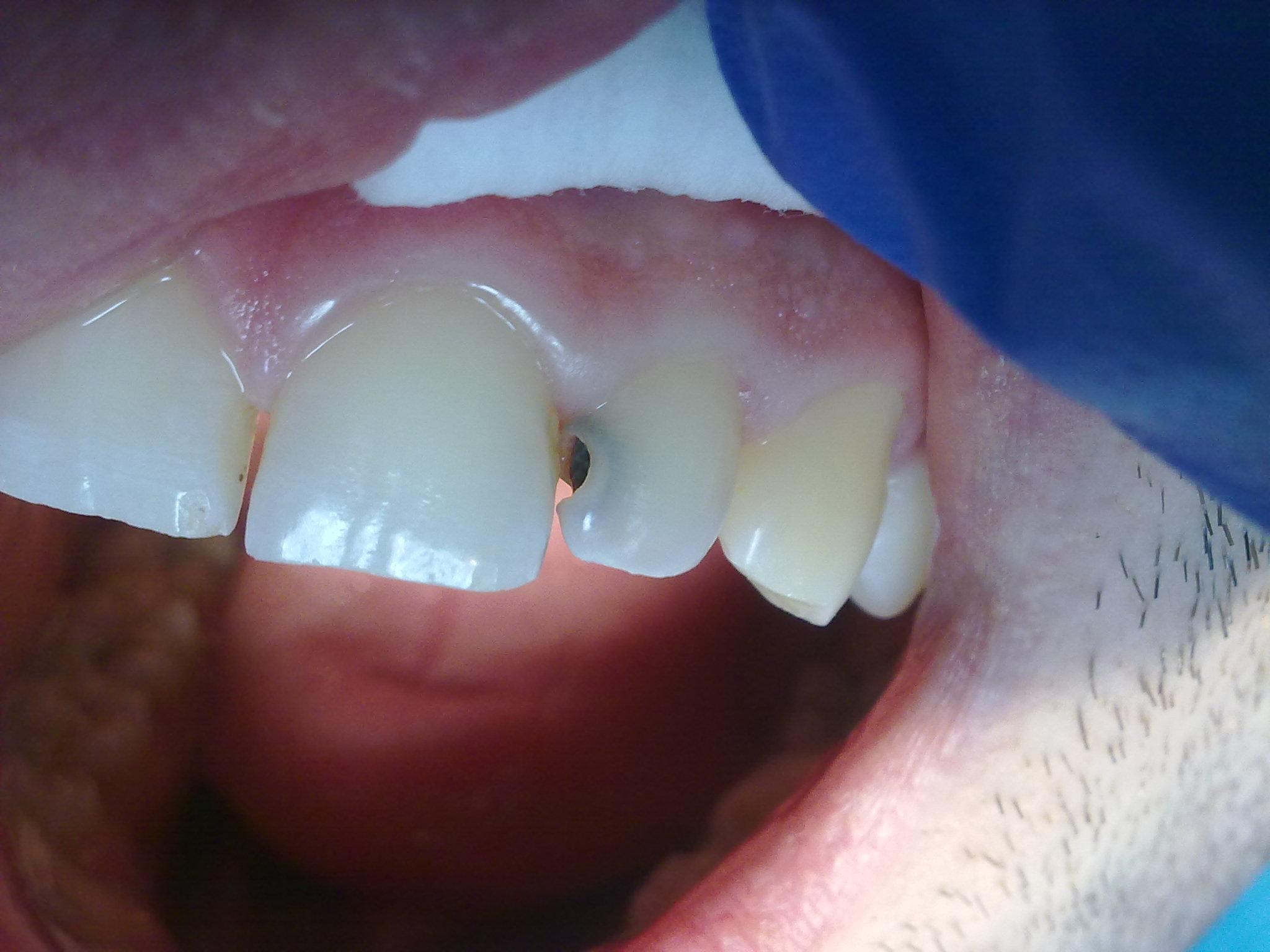 Передние зубы с кариесом