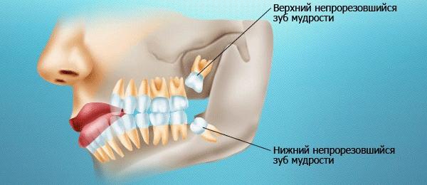 сильная реакция зубов на горячее и холодное