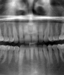 Панорамный снимок зубов - фото