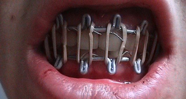 Перелом челюсти
