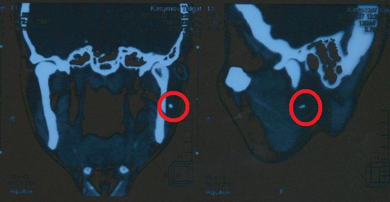 Рентгеновский снимок слюннокаменной болезни