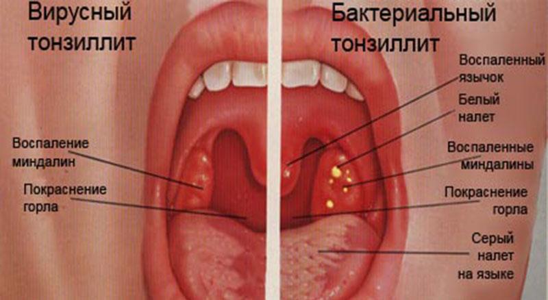 Вирусный и бактериальный тонзиллит: разница