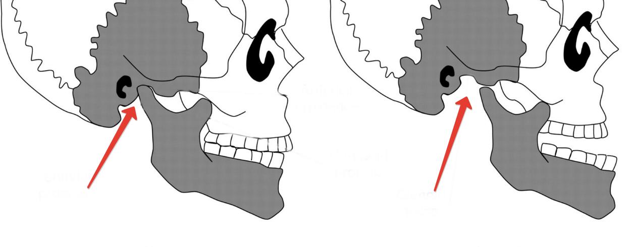 Вывихнут челюстной сустав