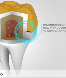 Болит зуб под коронкой: как снять боль в домашних условиях?