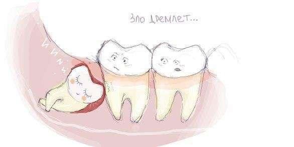 Растет зуб мудрости и болит десна: что делать, как снять боль если лезет и режется зуб мудрости