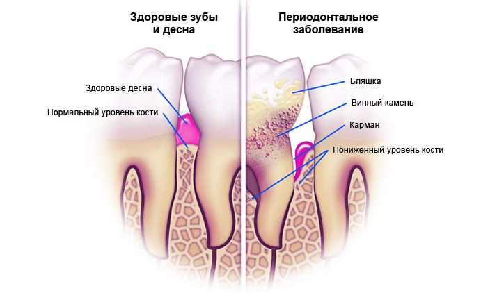 Характерные симптомы пародонтоза