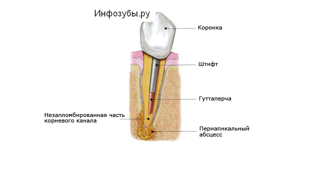 Почему болит зуб под коронкой?