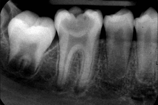 Пульпит на рентгеновском снимке