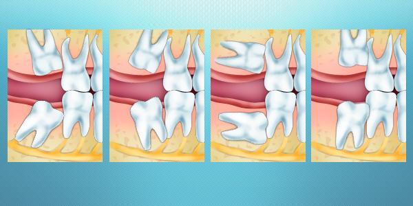 Возможные положения зубов мудрости