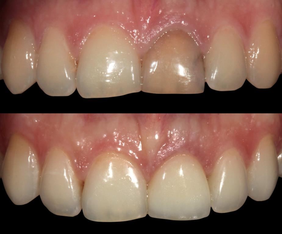сколько стоит отбеливание зубов в уфе