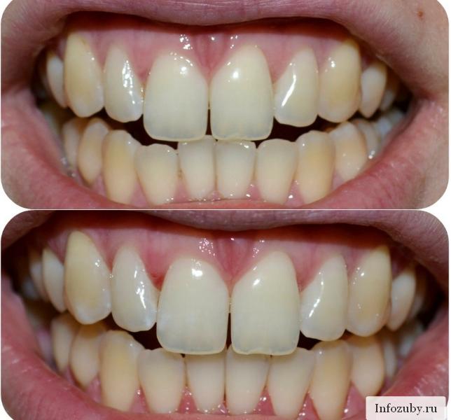 Фторирование (фото): до и после