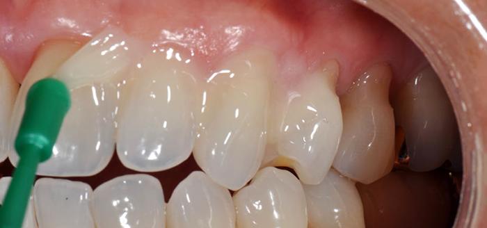 Фторирование зубов: как делается процедура?