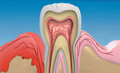 Как укрепить десна если шатаются зубы в домашних условиях