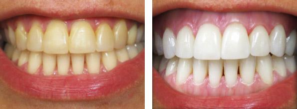 внутриканальное отбеливание зуба методика