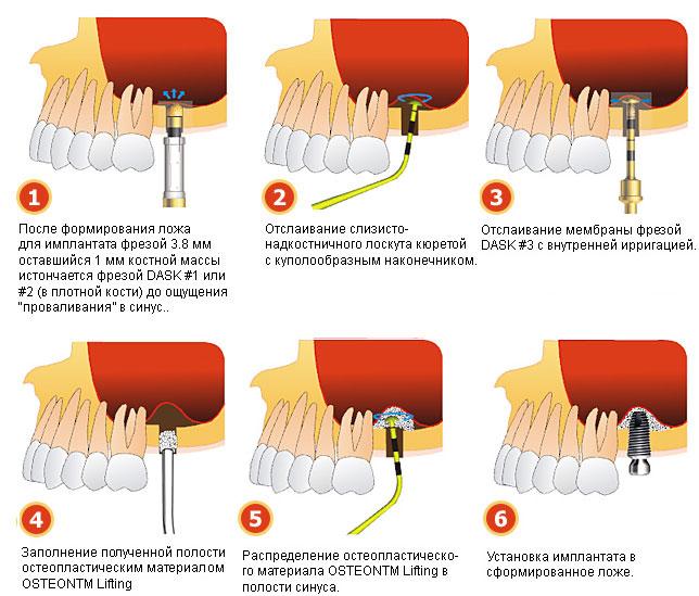 Синус-лифтинг в стоматологии: схема