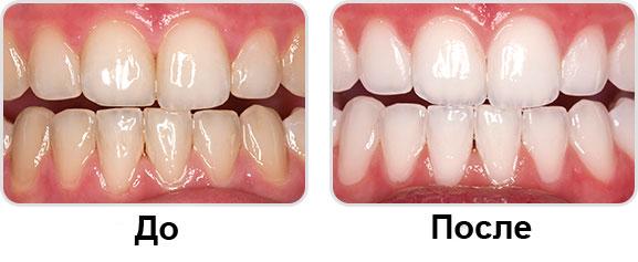 Отбеливание Опалесценс: фото до и после