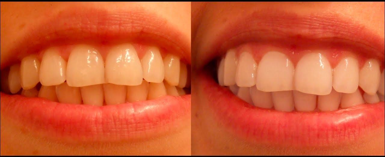 отбеливание зубов углем активированным в домашних