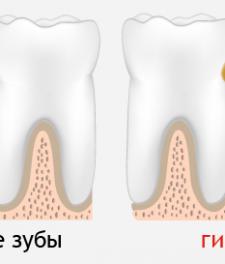 Сравнение гингивита и здоровых десен