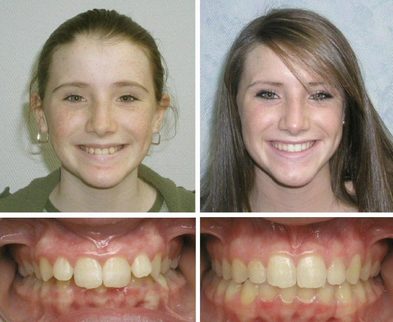 Глубокий прикус: фото до и после лечения