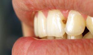 Как выглядит кариес на передних зубах?