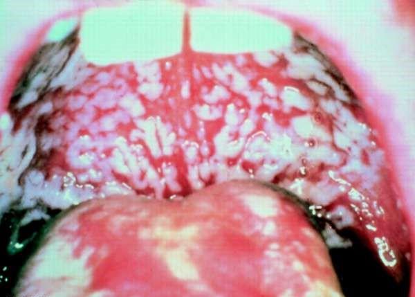 Кандидоз полости рта - фото