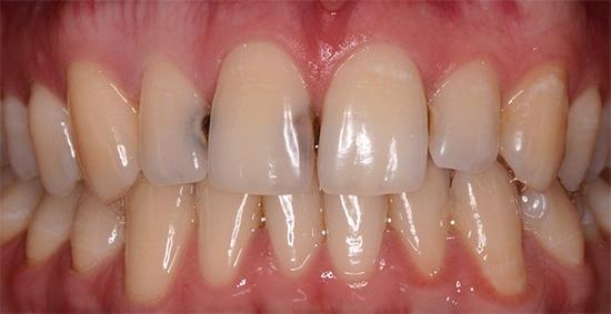 Кариес на передних зубах - фото