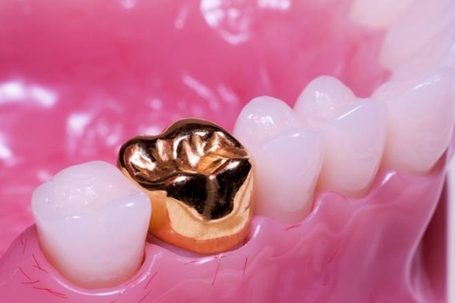 Коронки на жевательные зубы - фото
