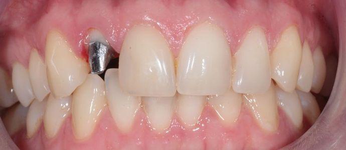 Коронки на передние зубы - фото